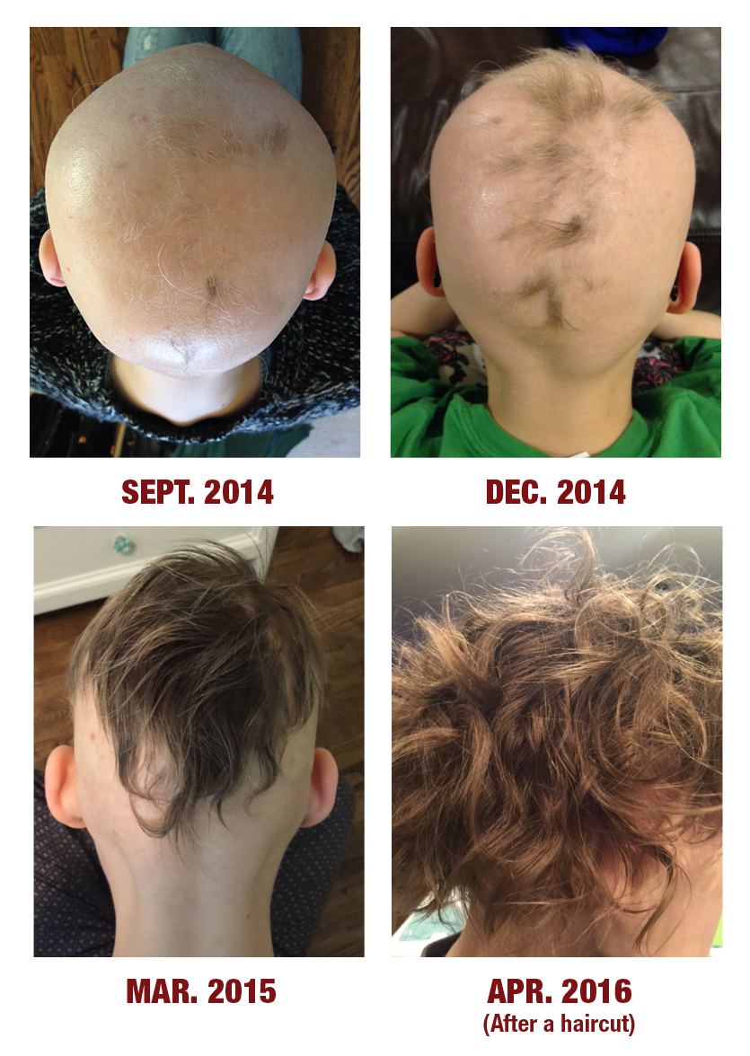 Thyroid Hair Loss Pattern Amazing Inspiration